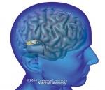 Brain Implant Lawrence Livermore National Laboratory 32631_COMP11Big_p