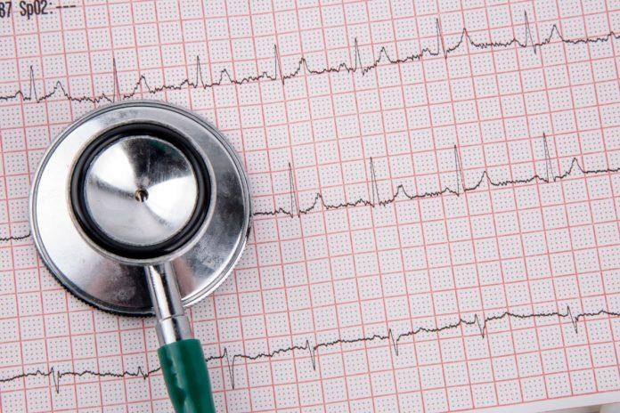 С 1 сентября! Ученые доказали, что образование на треть снижает риск инфаркта