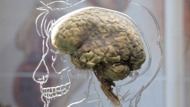 Резервное копирование мозга станет реальностью?